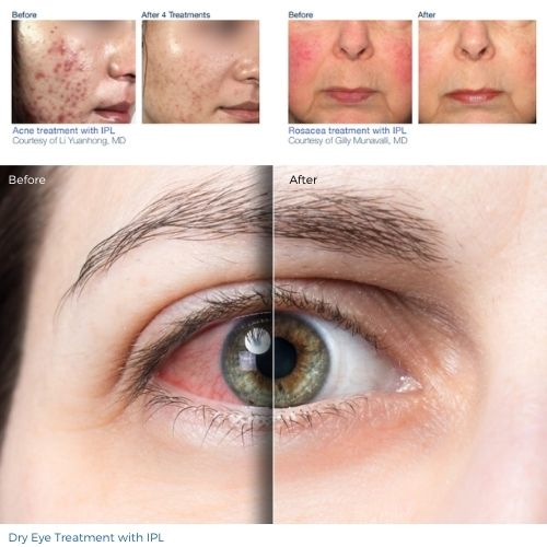 IPL Treatment for Dry Eye and Skin